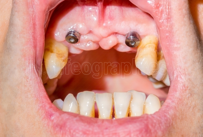 Canine dental implants in the mouth of a patient with advanced p