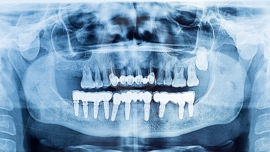 Dental x-ray panoramic of upper and lower jaw.dental implant pro