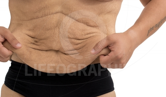 Stretch marks of a man after  weight loss
