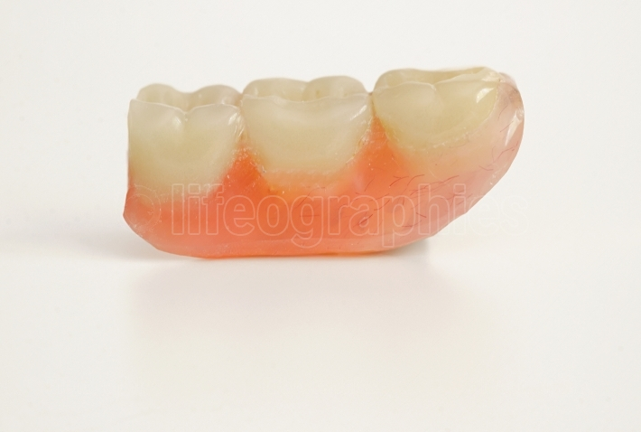 Three prosthetic teeth