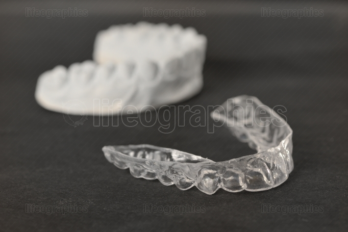 Tooth brackets transparent braces